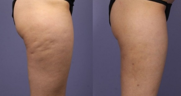 deal cellulite with cardio