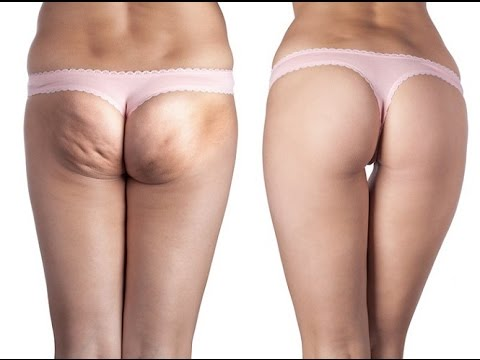 cellulite before after change