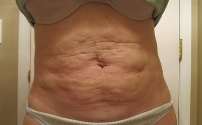 Effective Way To Remove Cellulite On Stomach