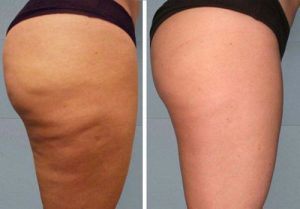 cellulite-before-after
