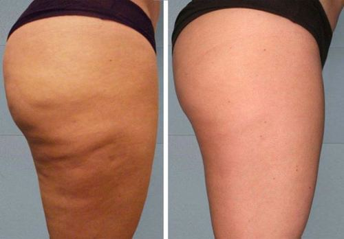 Image result for before after cellulite