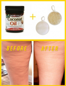 coconut-oil-cellulite-reduction