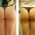 get-rid-cellulite-back-thighs-bum