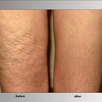 before after celluilte hide thighs