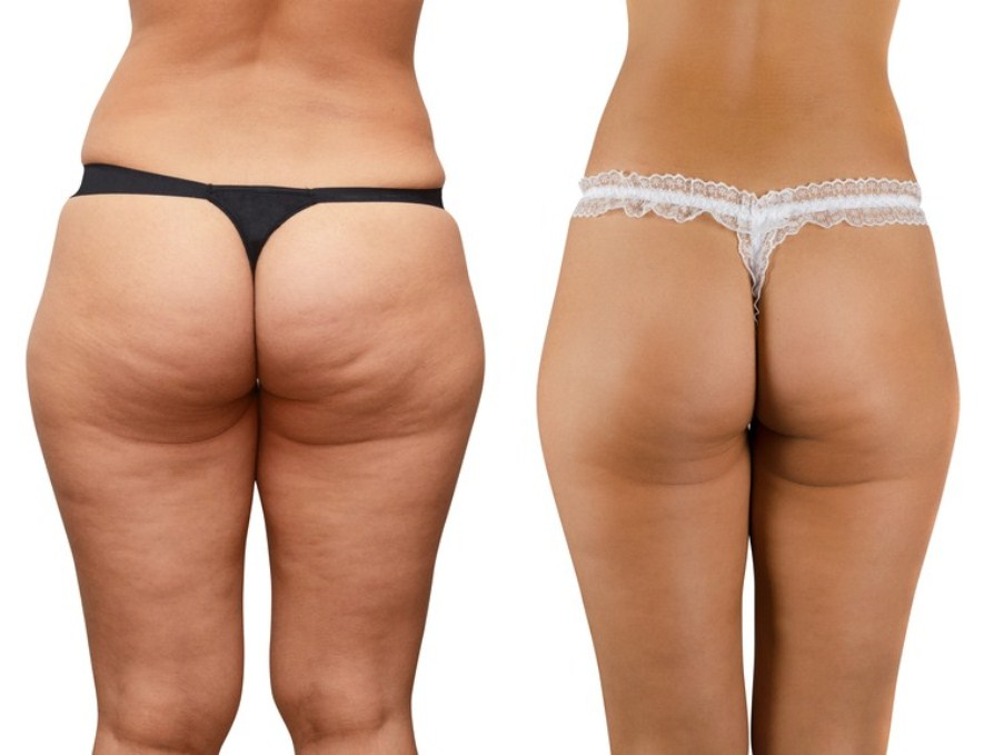 How to Get Rid of Cottage Cheese Thighs Without Effort