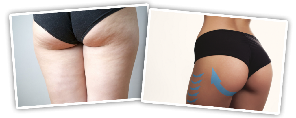 The gallery for --> Cellulite Before And After Weight Training